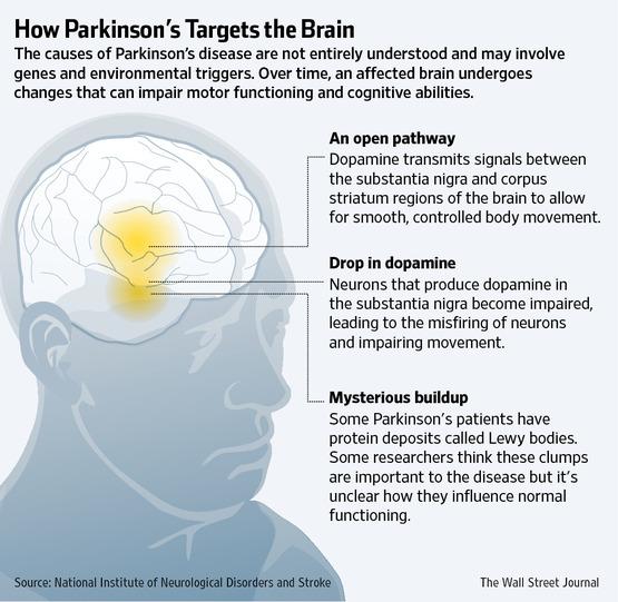 Progress Fighting Parkinson S Drug Side Effects I M
