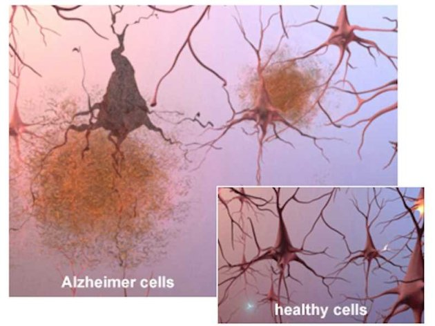 alzheimers-brain-cells-and-plaques